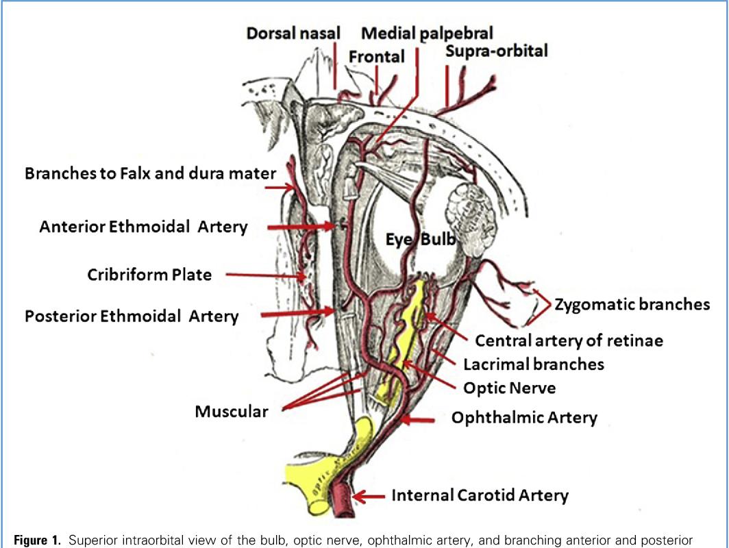Ethmoidal Arteries and Vascularized Anterior Skull Base Lesions ...
