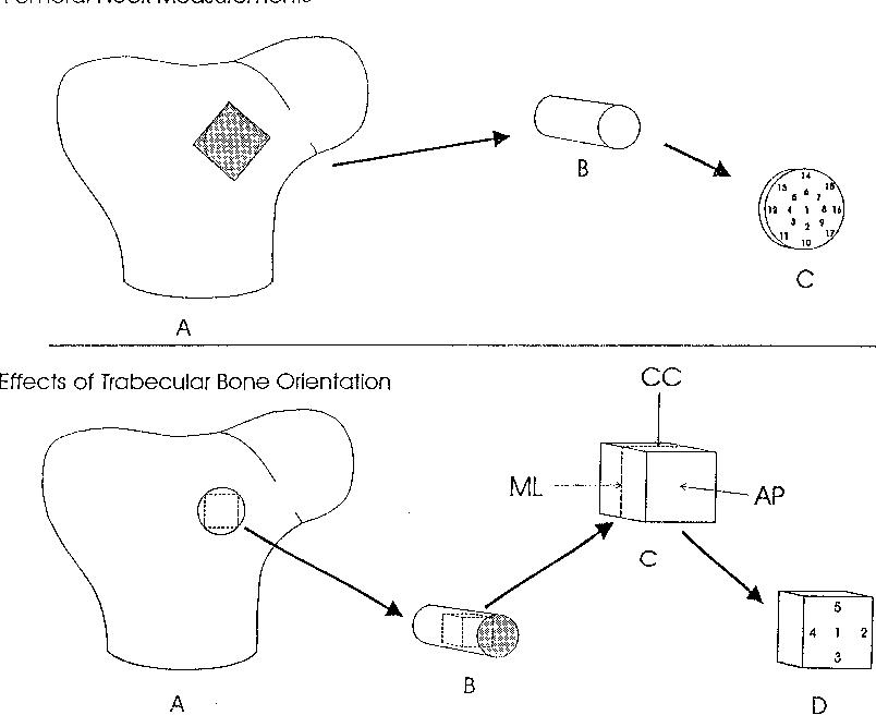 Correlations Among Bone Mineral Density Broadband Ultrasound