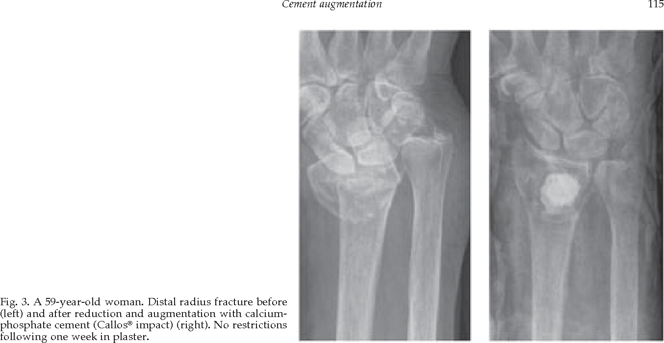 PDF] Cement augmentation in fracture treatment  - Semantic Scholar