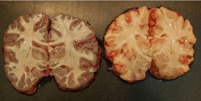 Figure 2 from Hydrogen sulphide discoloration of the brain