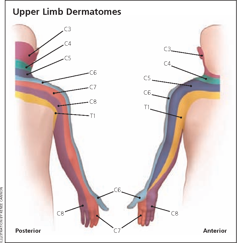 Peripheral nerve entrapment and injury in the upper extremity ...