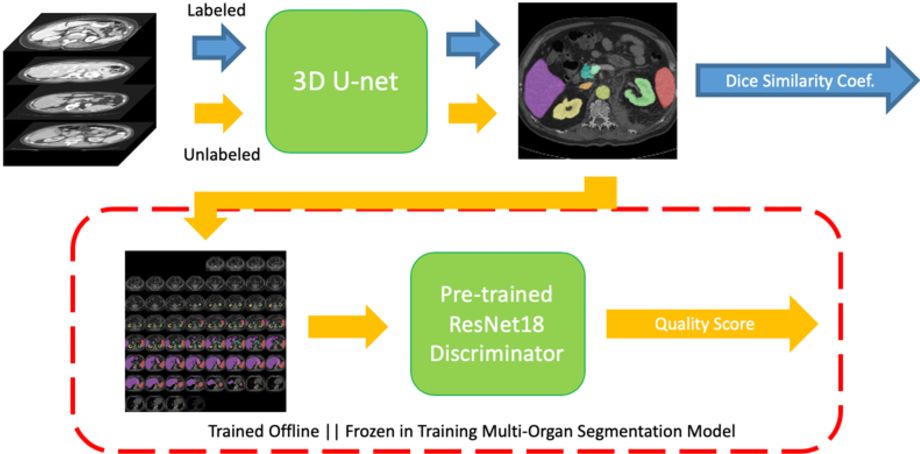 Figure 1 for Semi-Supervised Multi-Organ Segmentation through Quality Assurance Supervision