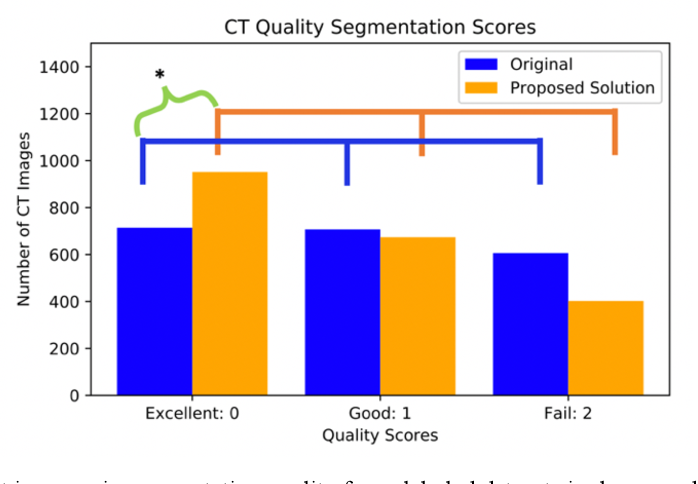Figure 4 for Semi-Supervised Multi-Organ Segmentation through Quality Assurance Supervision