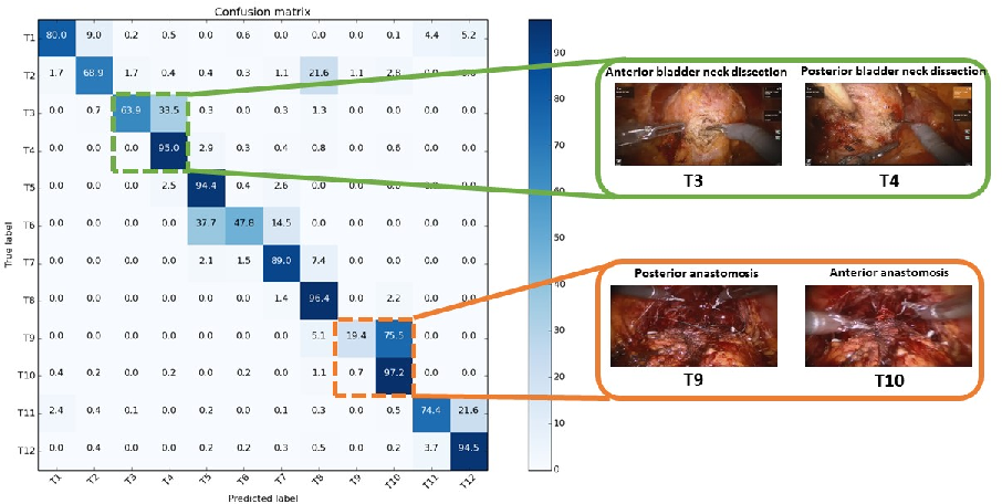 Figure 4 for Surgical Activity Recognition in Robot-Assisted Radical Prostatectomy using Deep Learning