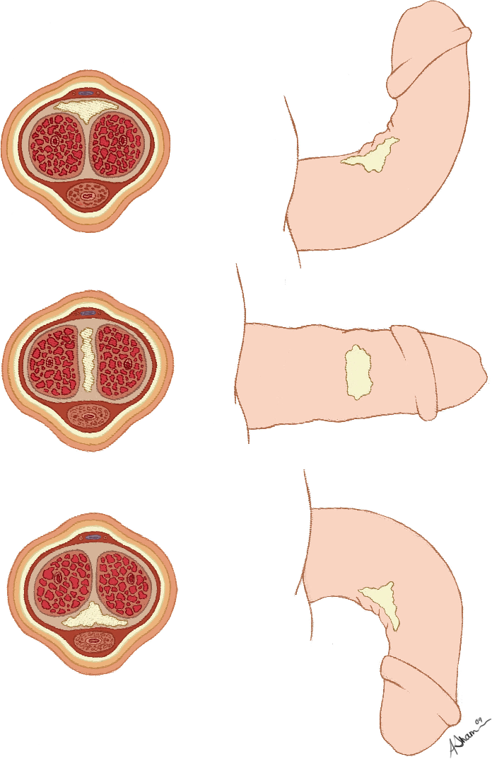 Upward curved erection