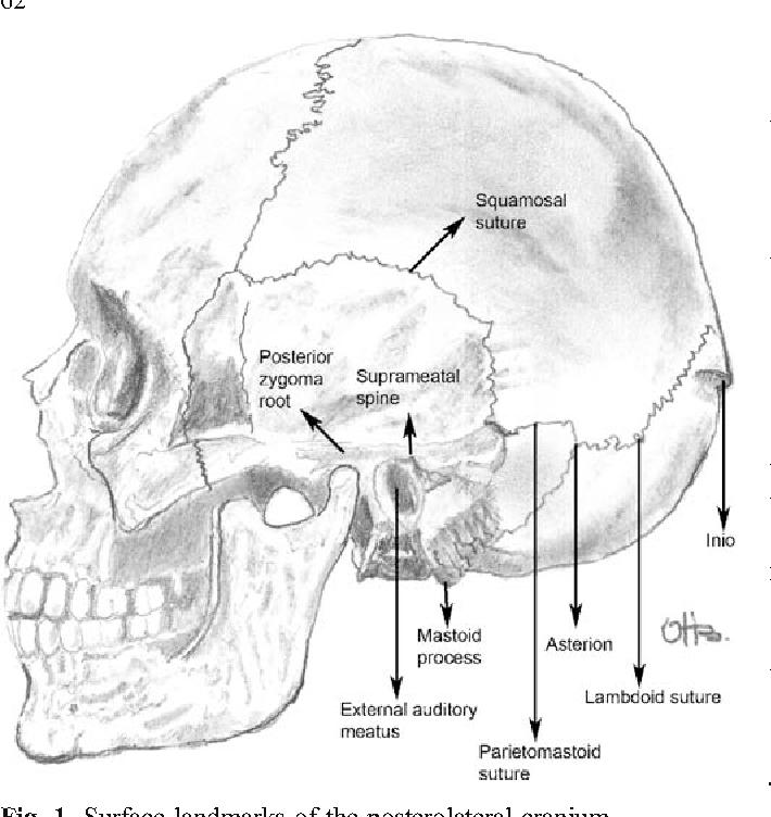 Surface anatomy of the posterolateral cranium regarding the ...
