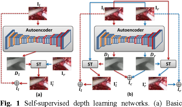 Figure 1 for Self-Supervised Siamese Learning on Stereo Image Pairs for Depth Estimation in Robotic Surgery