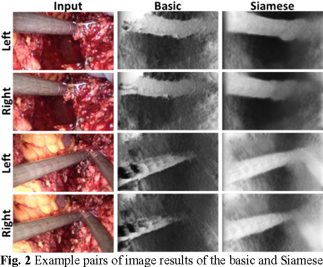 Figure 3 for Self-Supervised Siamese Learning on Stereo Image Pairs for Depth Estimation in Robotic Surgery