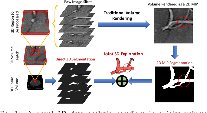 Figure 1 for VC-Net: Deep Volume-Composition Networks for Segmentation and Visualization of Highly Sparse and Noisy Image Data