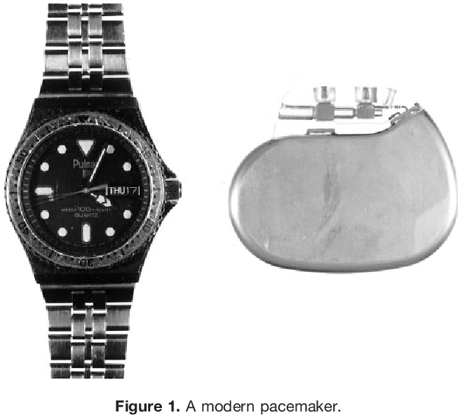Pacemakers And Microwaves >> Pdf Cardiac Pacemakers From The Patient S Perspective Semantic