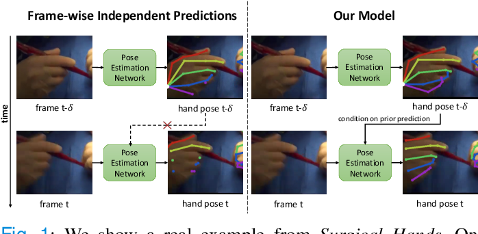 Figure 1 for Temporally Guided Articulated Hand Pose Tracking in Surgical Videos
