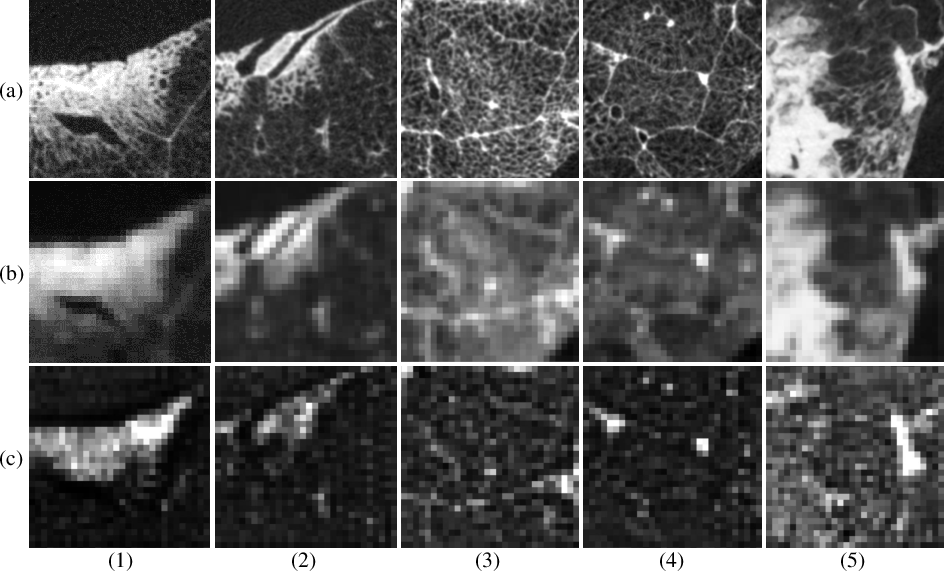 Figure 4 for Micro CT Image-Assisted Cross Modality Super-Resolution of Clinical CT Images Utilizing Synthesized Training Dataset