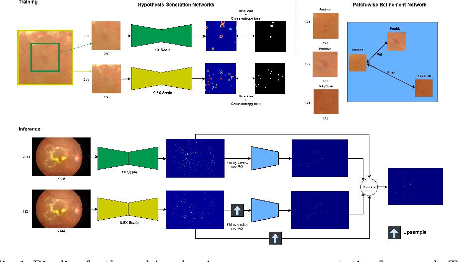 Figure 1 for Multi-scale Microaneurysms Segmentation Using Embedding Triplet Loss