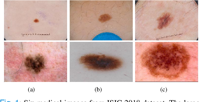 Figure 1 for DONet: Dual Objective Networks for Skin Lesion Segmentation
