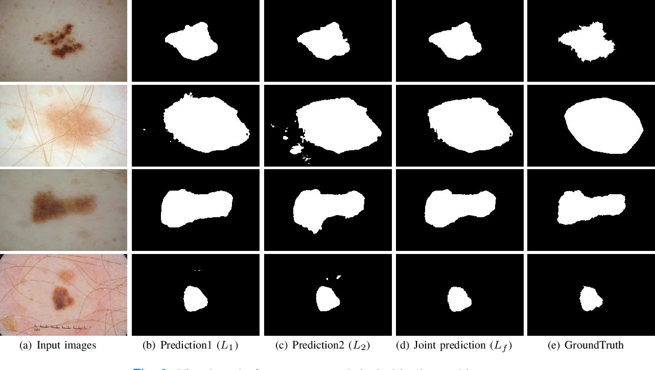 Figure 3 for DONet: Dual Objective Networks for Skin Lesion Segmentation