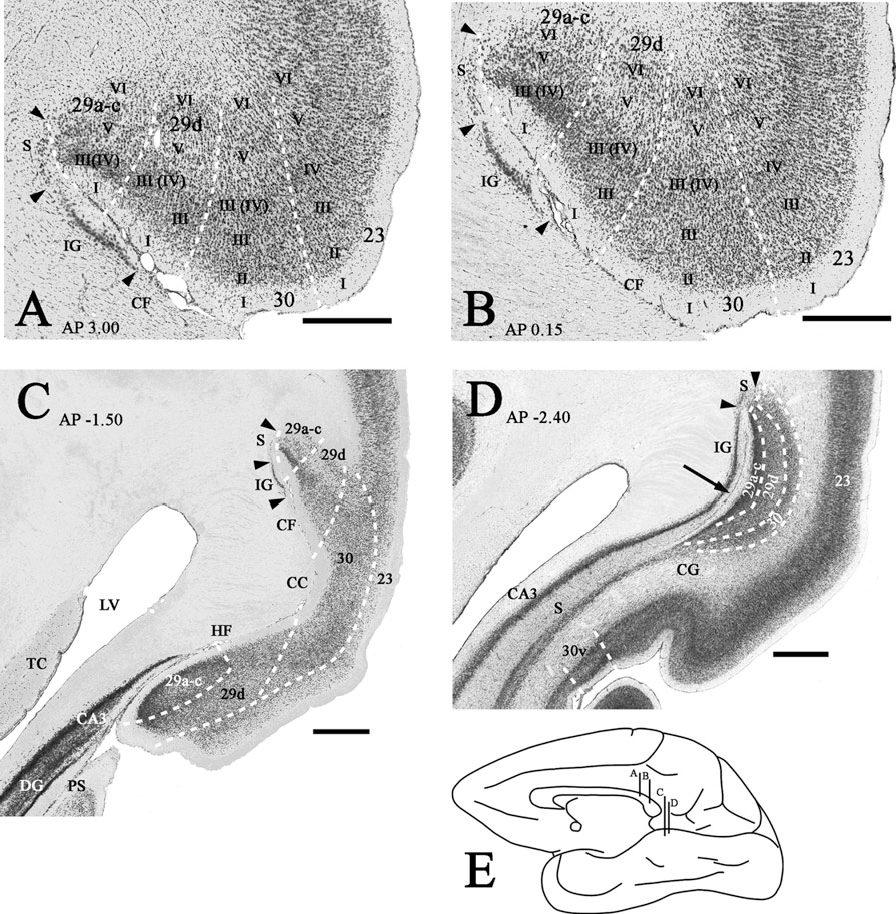 Medial Temporal Lobe Projections to the Retrosplenial Cortex of the ...