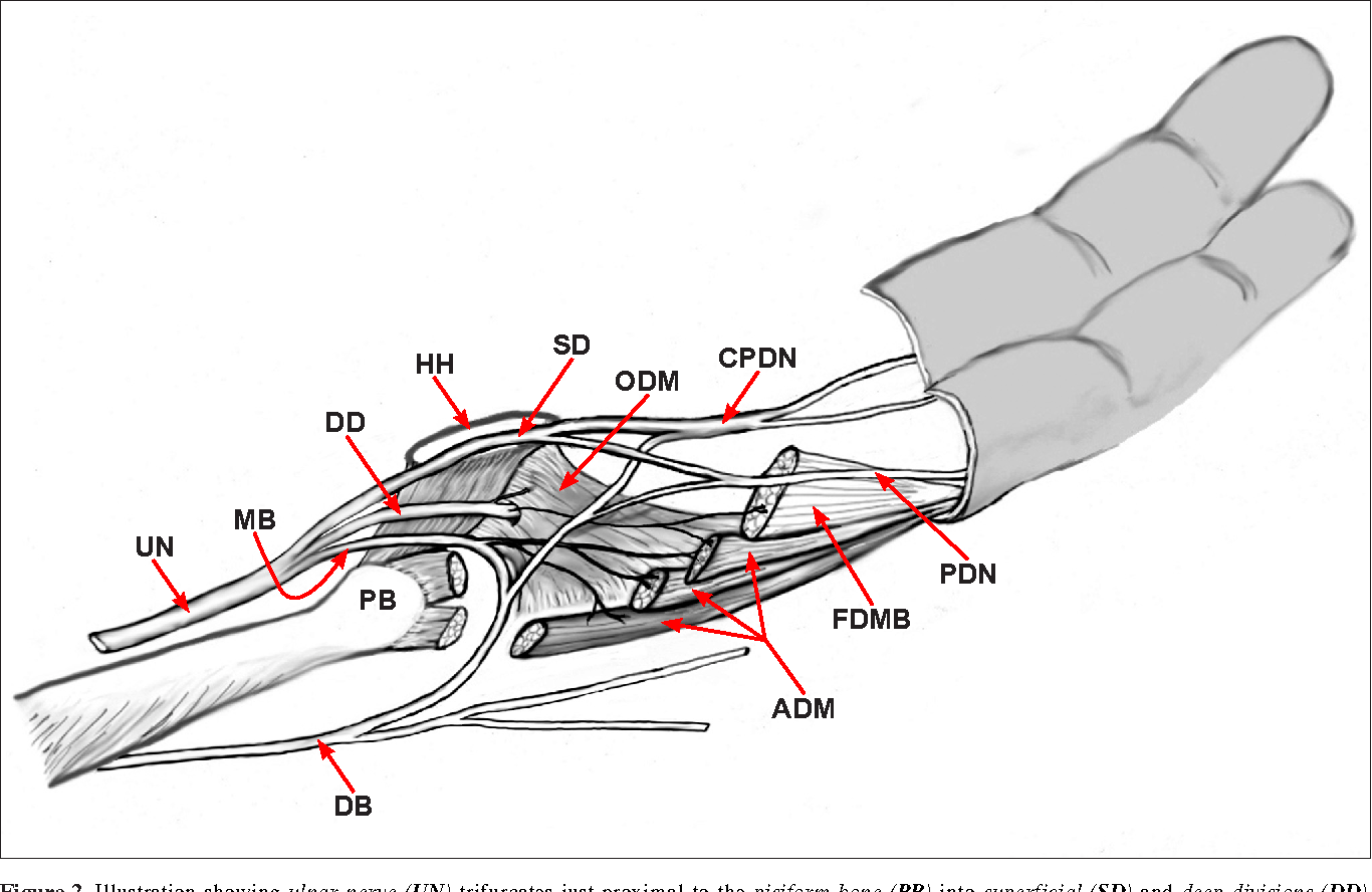 Anatomical variations in the ulnar nerve and hypothenar muscles ...