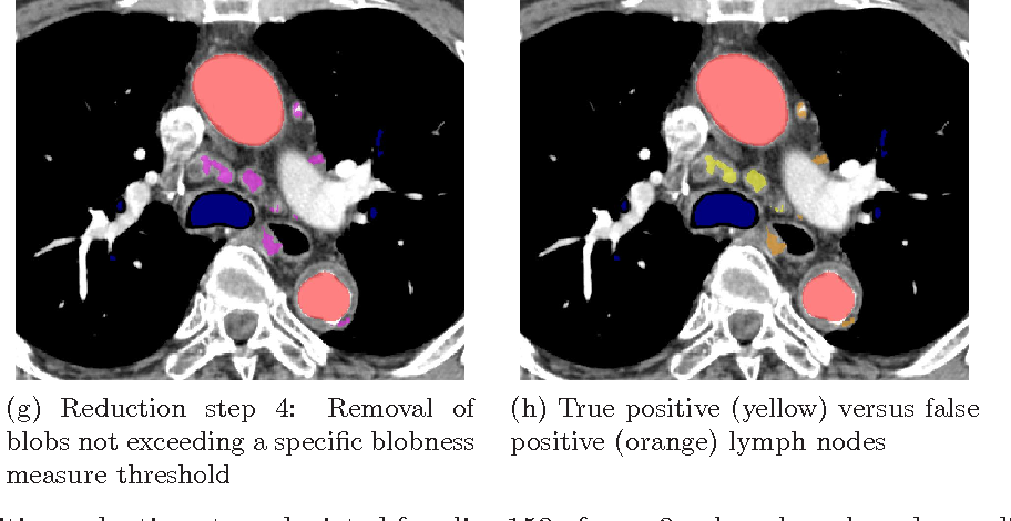 Automatic mediastinal lymph node detection in chest CT - Semantic ...