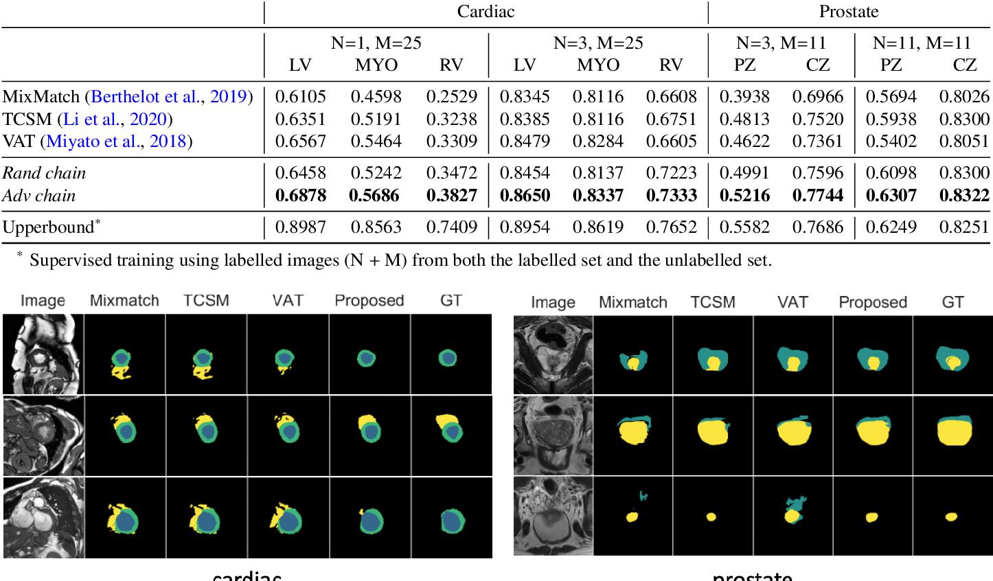 Figure 4 for Enhancing MR Image Segmentation with Realistic Adversarial Data Augmentation