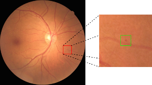 Figure 1 for Mini Lesions Detection on Diabetic Retinopathy Images via Large Scale CNN Features