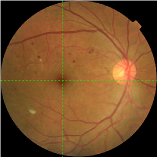 Figure 2 for Mini Lesions Detection on Diabetic Retinopathy Images via Large Scale CNN Features