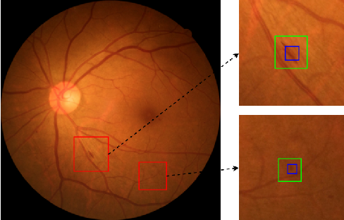 Figure 4 for Mini Lesions Detection on Diabetic Retinopathy Images via Large Scale CNN Features