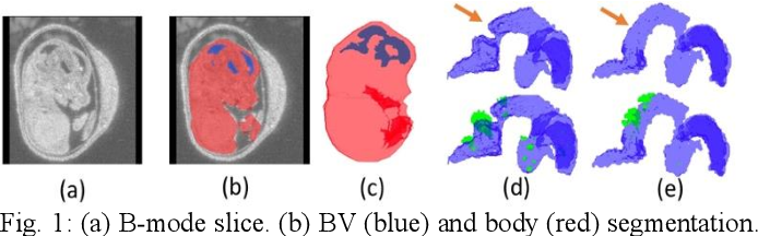 Figure 1 for Automatic Mouse Embryo Brain Ventricle & Body Segmentation and Mutant Classification From Ultrasound Data Using Deep Learning