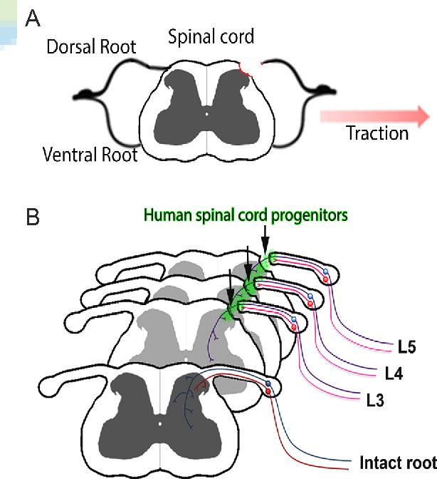 Figure 1 From Sensory Regeneration In Dorsal Root Avulsion