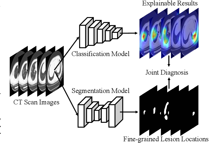 Figure 1 for JCS: An Explainable COVID-19 Diagnosis System by Joint Classification and Segmentation