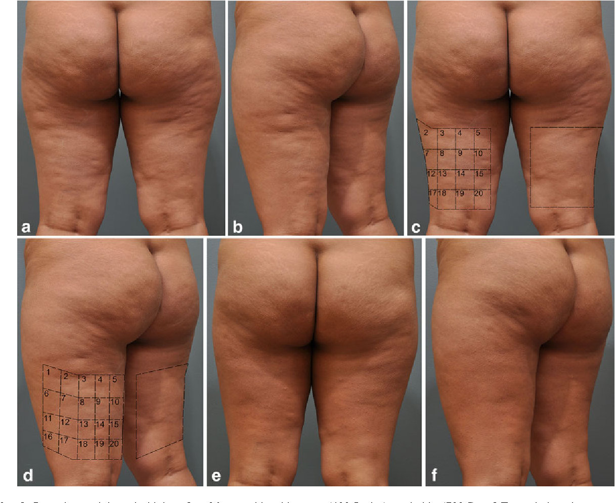 Figure 12 from Single Treatment of Grades II and III Cellulite Using