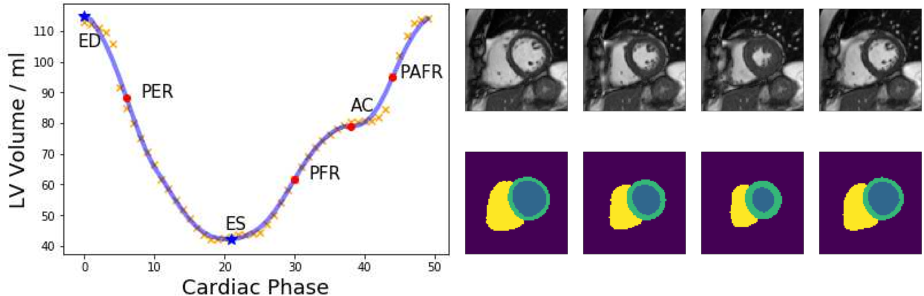 Figure 3 for Global and Local Interpretability for Cardiac MRI Classification