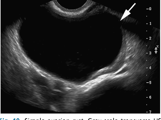 Simple Ovarian Cyst Gray Scale Transverse Us Image Shows A