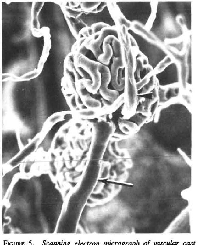 Figure 5 from Renal afferent arteriole in the spontaneously ...