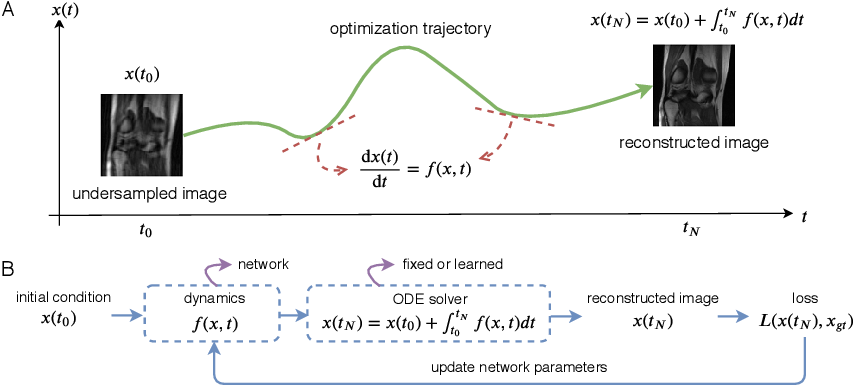 Figure 1 for MRI Image Reconstruction via Learning Optimization Using Neural ODEs