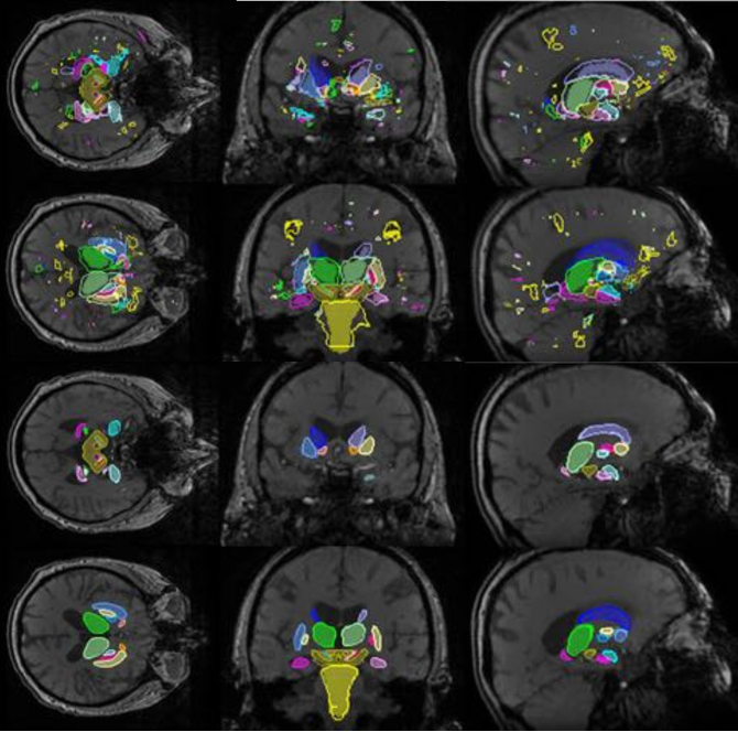 Figure 4 for Hough-CNN: Deep Learning for Segmentation of Deep Brain Regions in MRI and Ultrasound