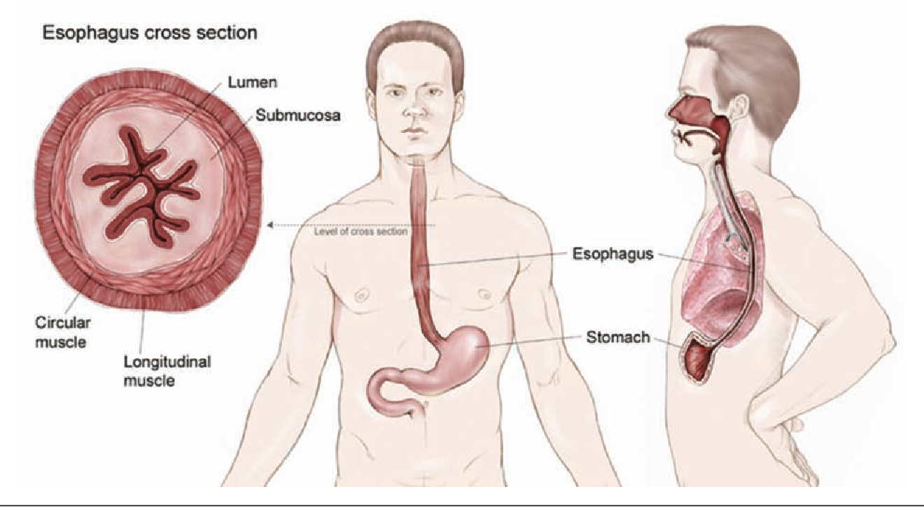 Figure 1 from Nutrition considerations in esophagectomy patients ...