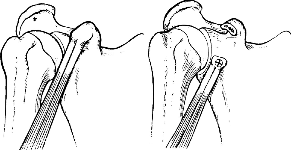 Figure 5 From Bony Instability Of The Shoulder Semantic Scholar
