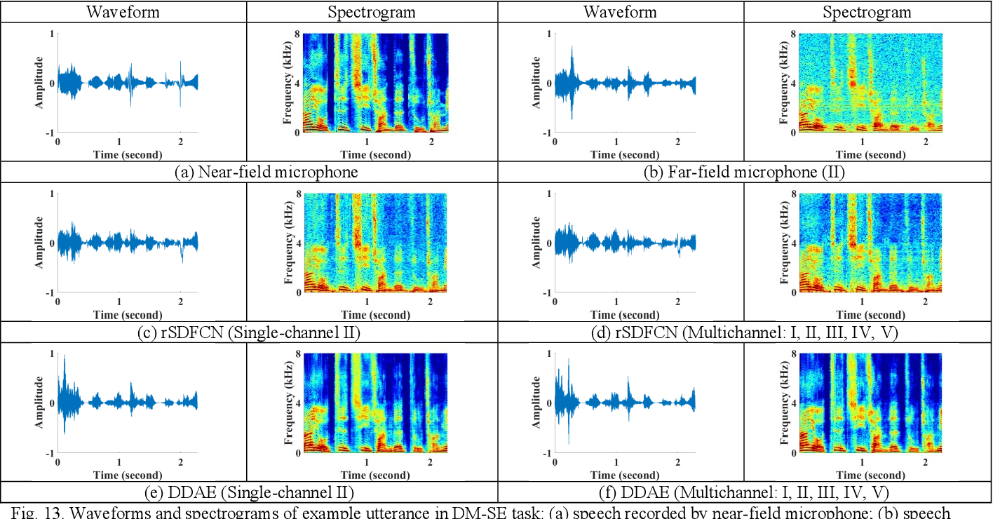 Figure 4 for Multichannel Speech Enhancement by Raw Waveform-mapping using Fully Convolutional Networks