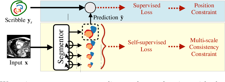 Figure 1 for Self-supervised Multi-scale Consistency for Weakly Supervised Segmentation Learning