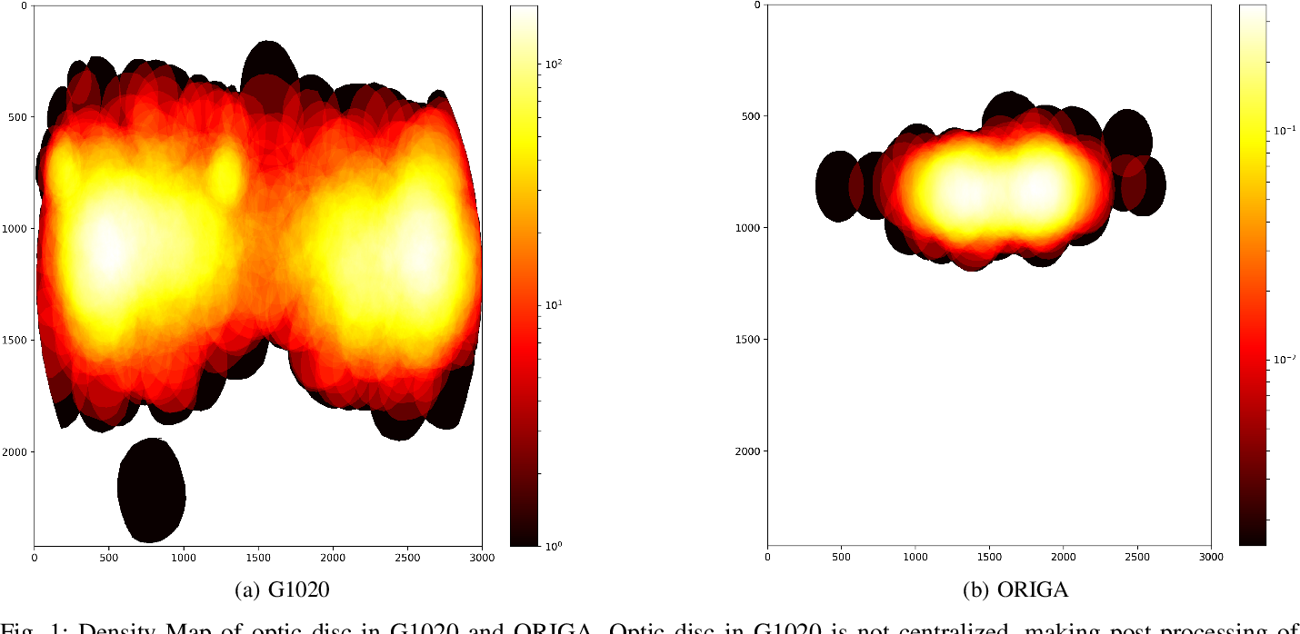 Figure 1 for G1020: A Benchmark Retinal Fundus Image Dataset for Computer-Aided Glaucoma Detection