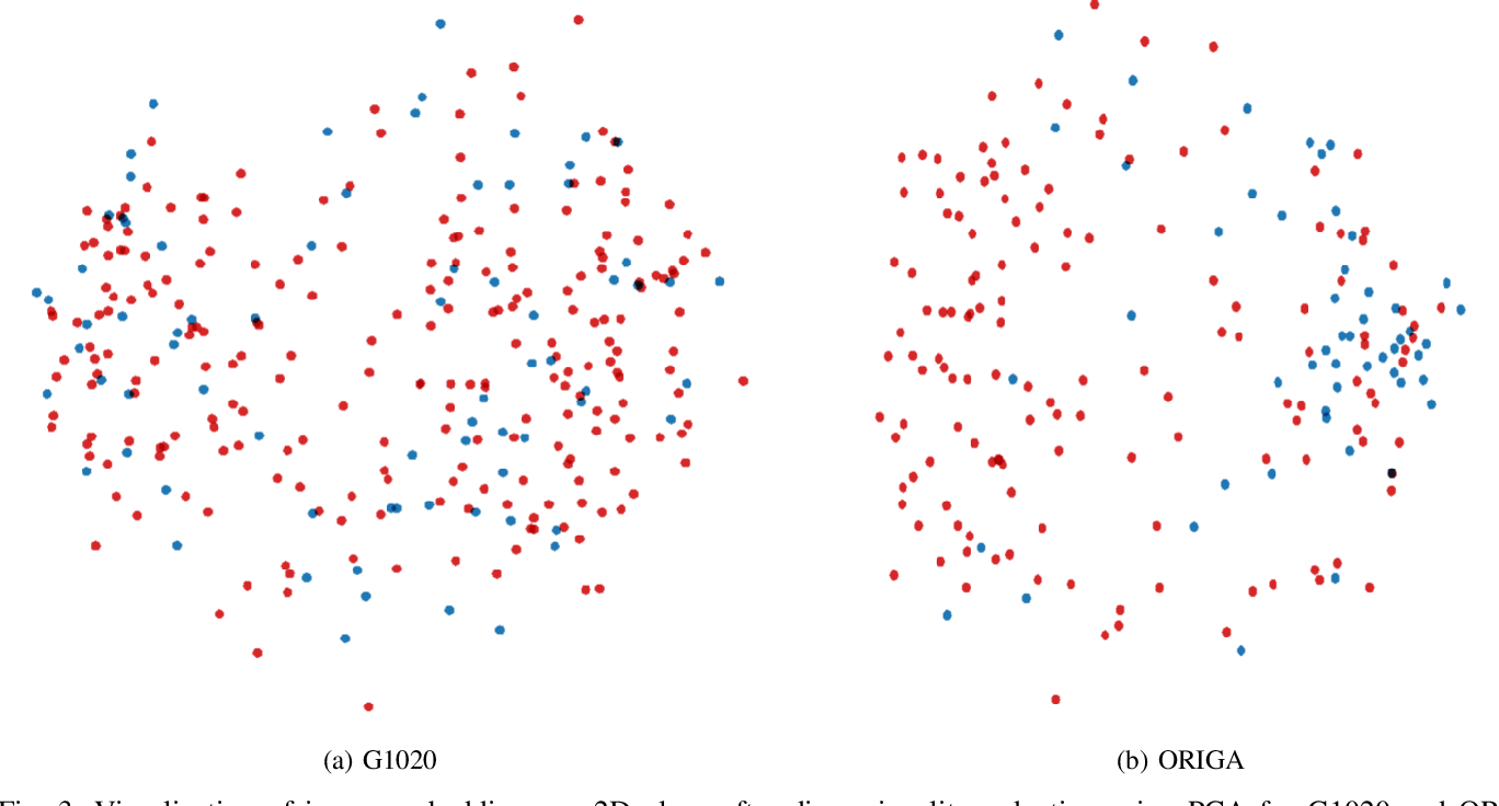 Figure 3 for G1020: A Benchmark Retinal Fundus Image Dataset for Computer-Aided Glaucoma Detection