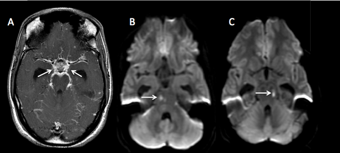 Figure 3 from MR imaging of adult acute infectious encephalitis ...