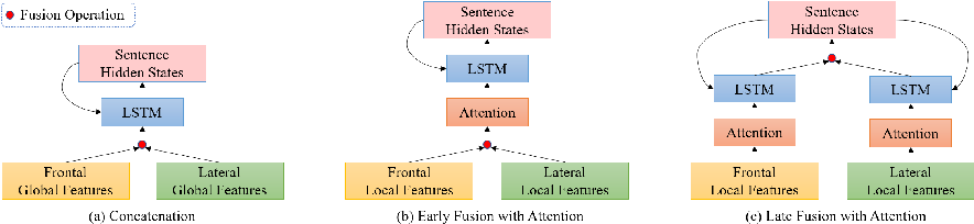 Figure 3 for Automatic Radiology Report Generation based on Multi-view Image Fusion and Medical Concept Enrichment