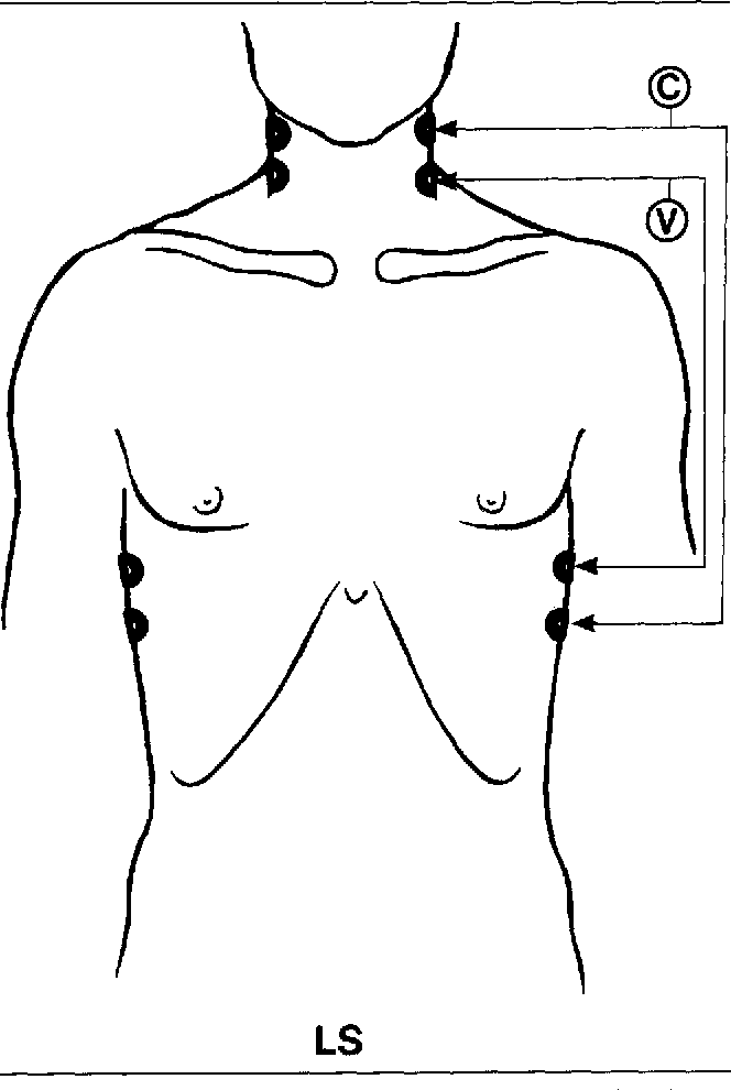 Fig 1. Placement of the spot electrodes on the thorax and in the neck. C = the current injecting electrodes; and V = the voltagemeasuring electrodes.