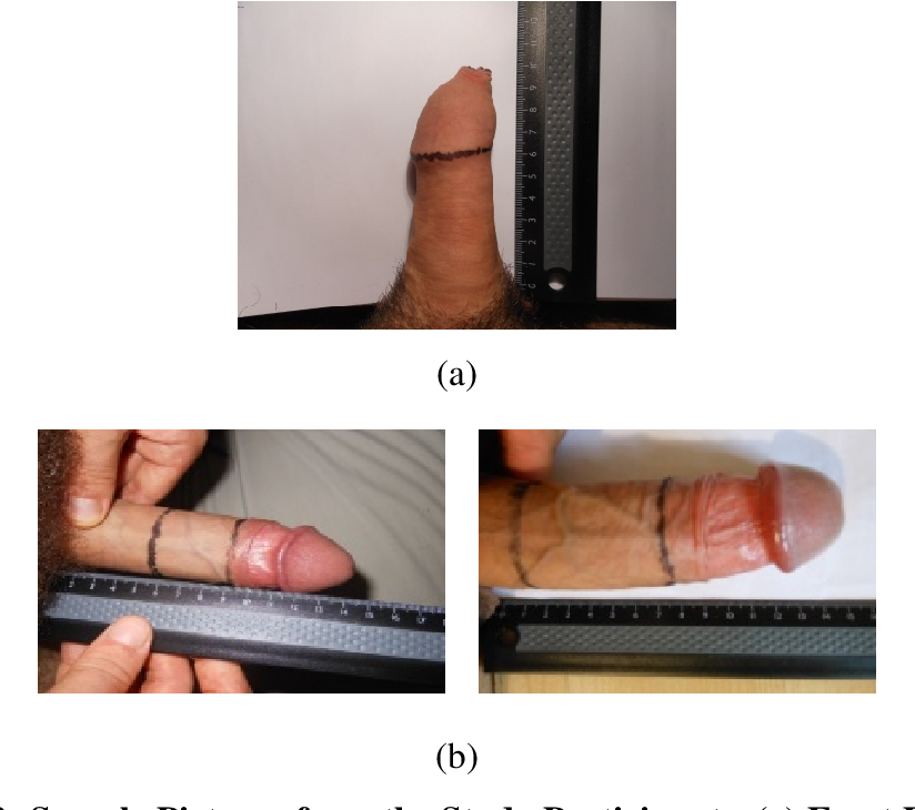 Average length of a flaccid and erect penis is published to help counsellors