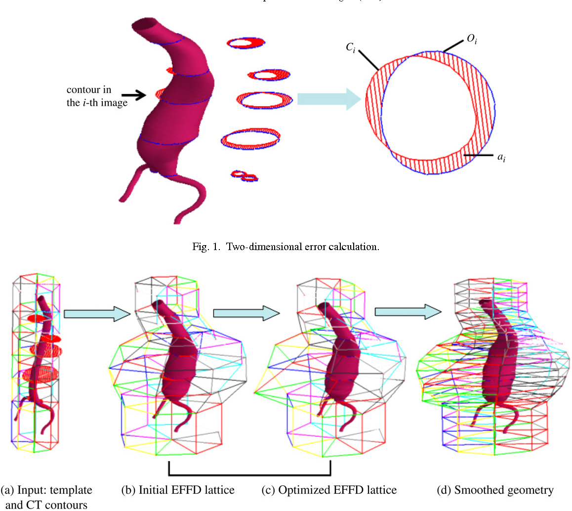 Three-dimensional shape reconstruction of abdominal aortic aneurysm ...