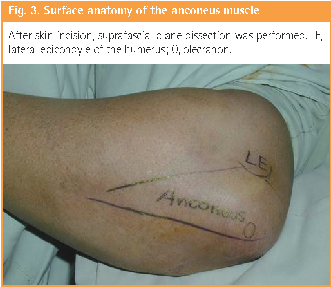 The Anconeus Muscle Free Flap: Clinical Application to Lesions on ...
