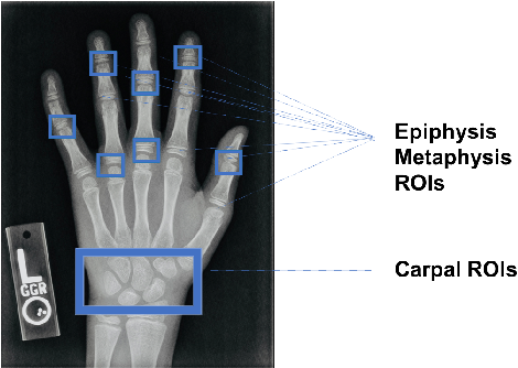 Figure 1 for A Deep Framework for Bone Age Assessment based on Finger Joint Localization