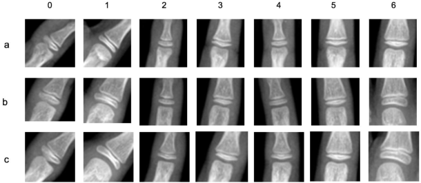 Figure 3 for A Deep Framework for Bone Age Assessment based on Finger Joint Localization