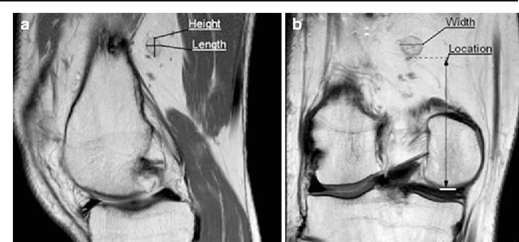 Features Of The Popliteal Lymph Nodes Seen On Musculoskeletal Mri In
